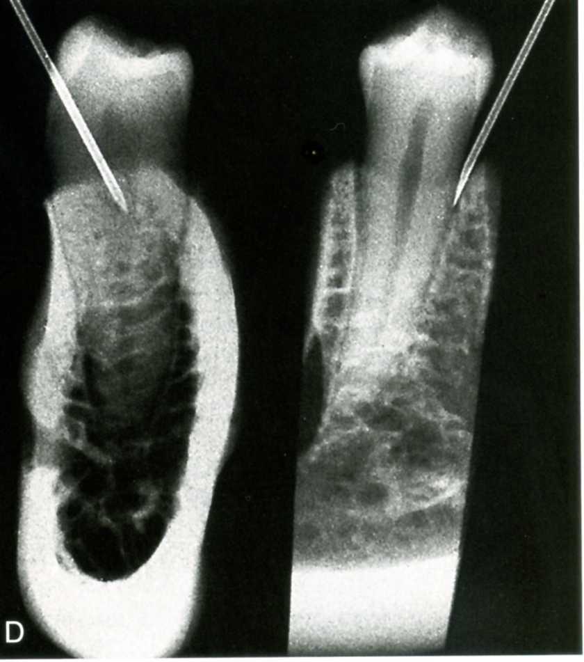 gây tê trong điều trị tủy răng
