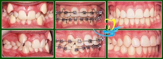 Kết quả chưa răng khấp khểnh bằng niềng răng