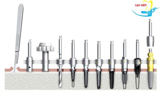 Các bước khoan trong quy trình cấy ghép implant