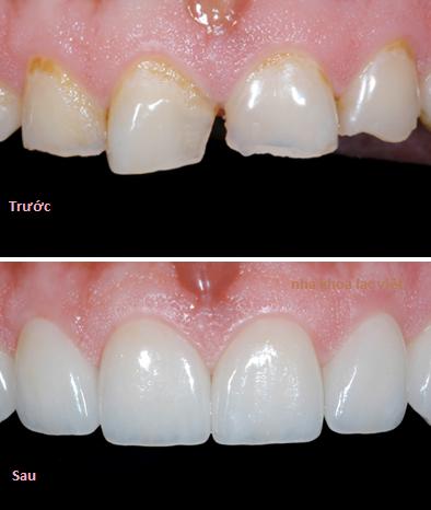 bọc 2 răng cửa cho răng bị sứt