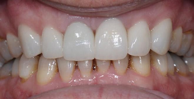 bọc răng kim loại thường cho 2 răng cửa