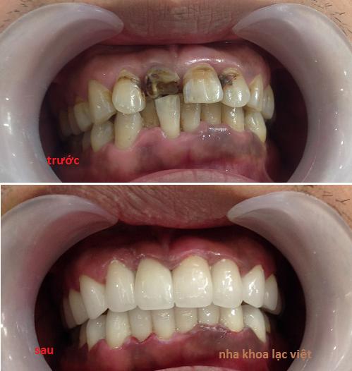 bọc răng sứ cercon ht cao cấp