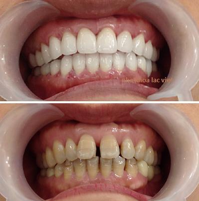 bọc răng sứ cercon ht cho răng bị nhiễm tetaxilin