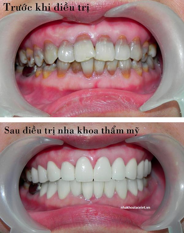 bọc răng sứ cho răng hô vẩu