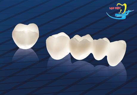 bọc răng sứ phụ thuộc vào những yếu tố nào