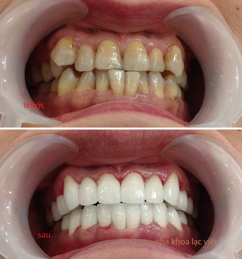 bọc răng sứ thẩm mỹ Emax Zr Cad