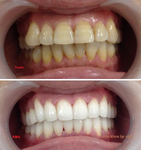 bọc răng sứ thẩm mỹ bị nhiễm tetaxilin