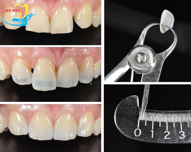 cách thức bọc răng sứ an toàn nhất