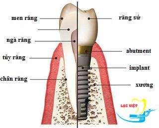 cách trồng răng implant: cấu tạo răng implant