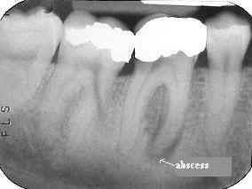 đau nhức kéo dài sau khi bọc răng sứ