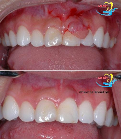 điều trị viêm lợi phì đại khi bọc răng sứ