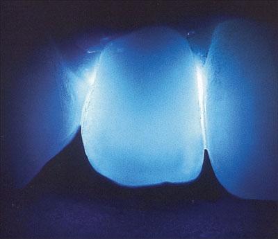 độ mờ của răng sứ cercon ht