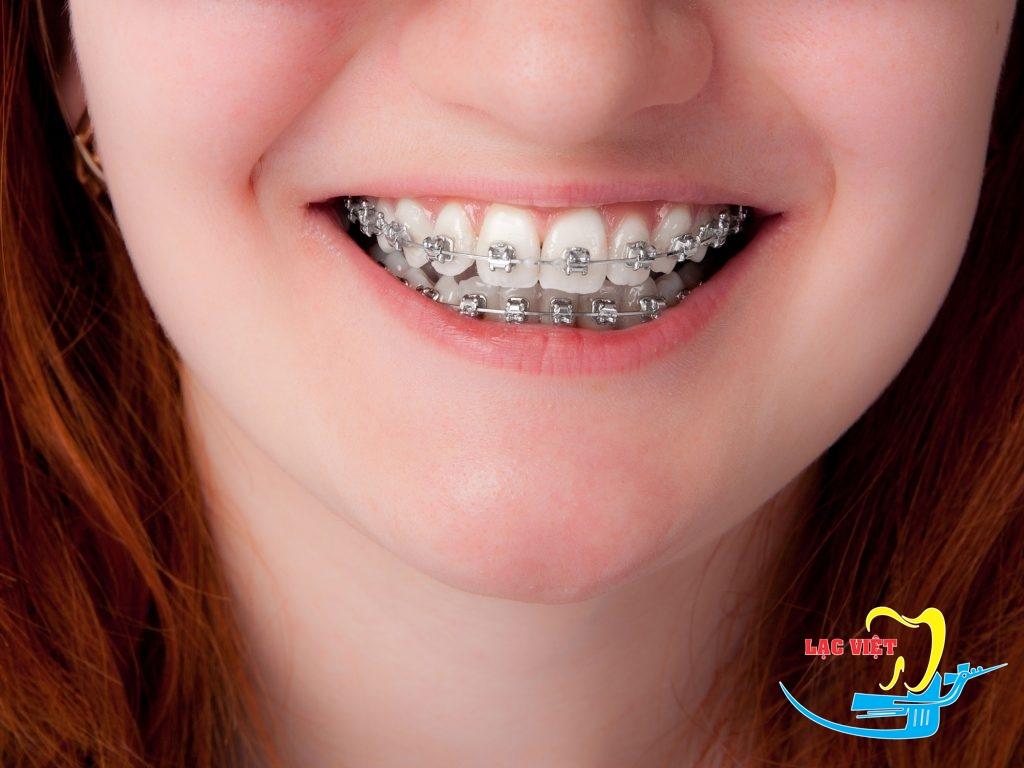 Niềng răng hô là phương pháp chỉnh nha tiên tiến nhất