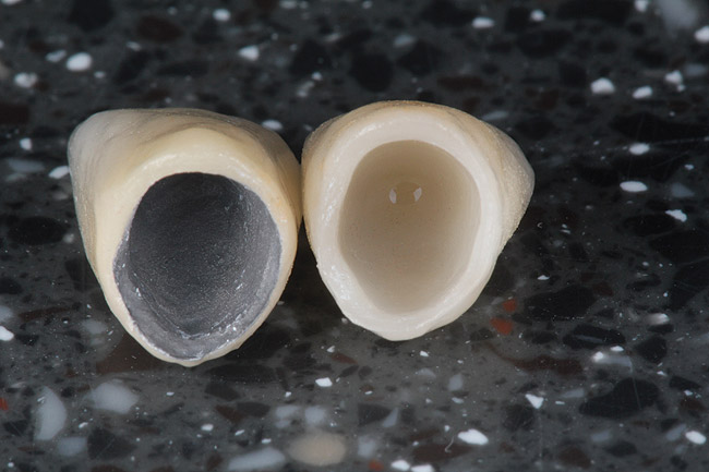 hình ảnh so sánh răng sứ kim loại và không kim loại