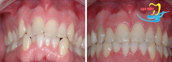Niềng răng mắc cài sứ giá bao nhiêu phụ thuộc nhiều yếu tố