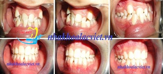 kết quả một trường hợp niềng răng trả góp tại nha khoa Lạc Việt