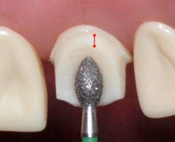 Kỹ thuật mài cùi răng sứ không kim loại