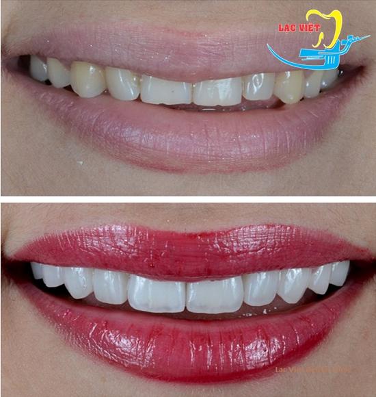 hình ảnh bọc răng sứ thẩm mỹ
