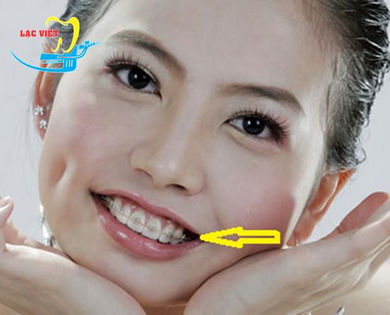 Nắn chỉnh răng khấp khểnh khắc phục tam giác đen khóe mép