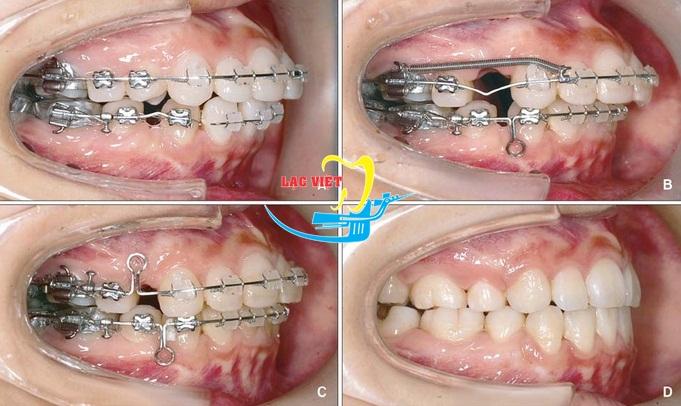 kết quả tối ưu của một trường hợp niềng răng hô