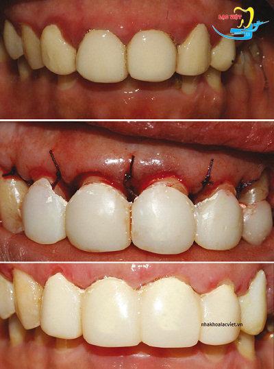 phẫu thuật để làm lại răng sứ