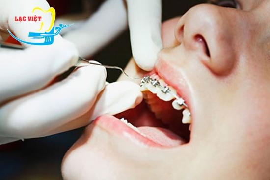 quy trình chỉnh răng hô gồm 6 bước