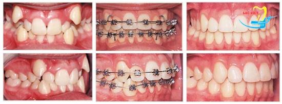 quy trình niềng răng hô tại nha khoa uy tín