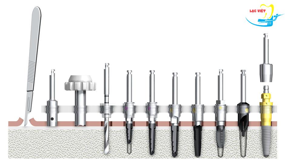 Quy trình phẫu thuật cắm ghép implant nha khoa