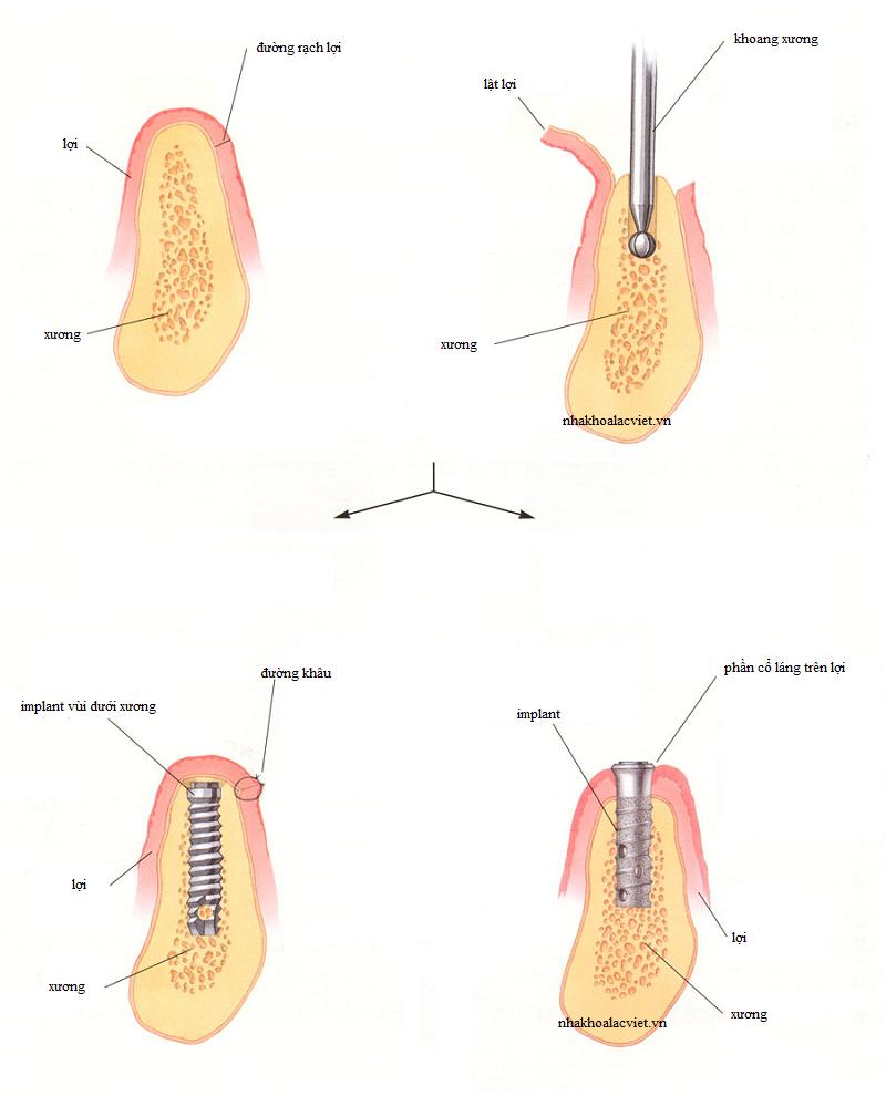Các bước trong quy trình cấy ghép implant