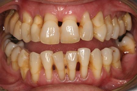 răng bị thưa do viêm quanh răng