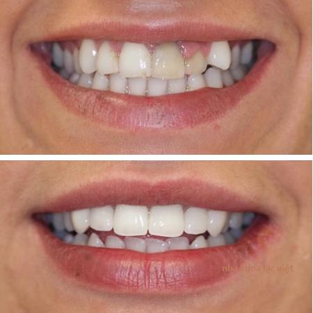 răng cửa không đồng màu và kết quả sau khi bọc răng
