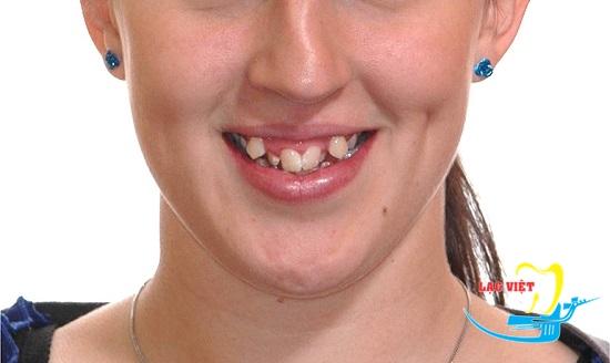 Răng khấp khểnh ảnh hưởng nghiêm trọng đến thẩm mỹ khuôn mặt