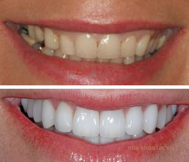 răng sậm màu trước và sau khi điều trị