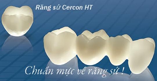 răng sứ cercon ht cao cấp là gì