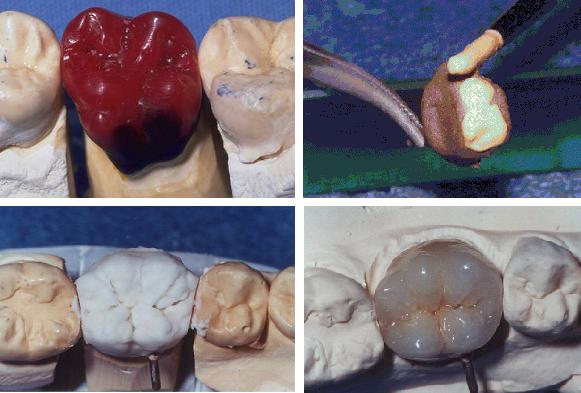so sánh răng sứ titan và răng sứ emax