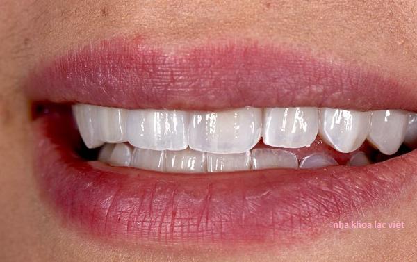 thẩm mỹ răng bằng công nghệ emax