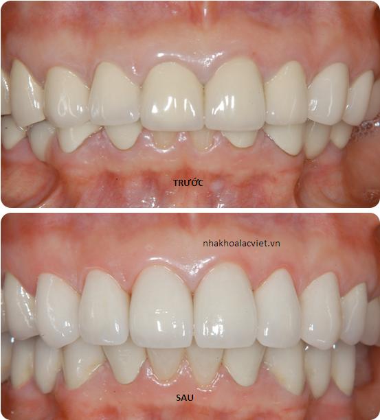 thẩm mỹ răng bằng sứ alumina