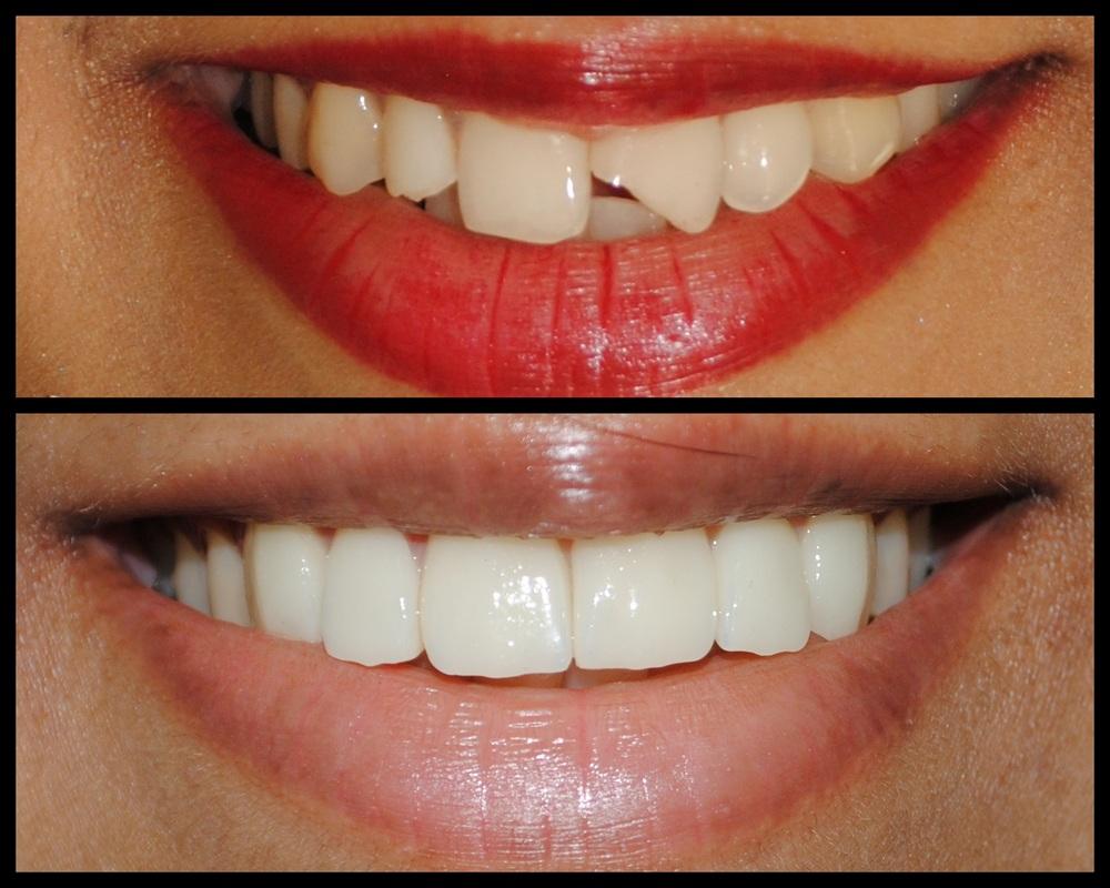 thẩm mỹ răng sứt mẻ bằng mặt dán sứ veneer