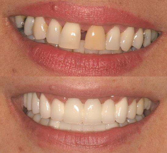 Cách xử lý răng cửa bị thưa tốt nhất