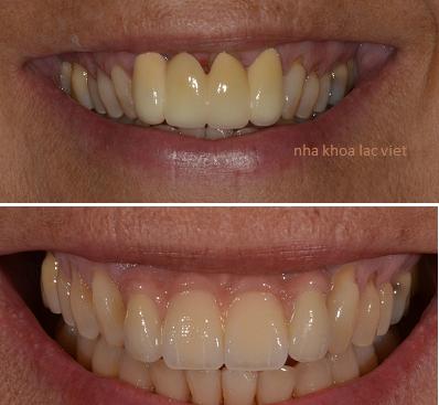 thay mới răng cũ rất xấu bằng răng hoàn toàn mới