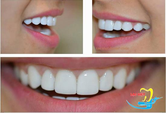 trám răng thẩm mỹ là một phương pháp thẩm mỹ nha khoa đơn giản