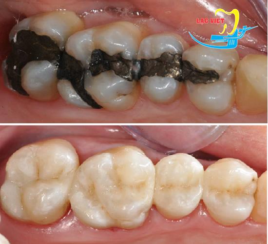 Trám răng thẩm mỹ khắc phục răng sậm màu, răng xấu