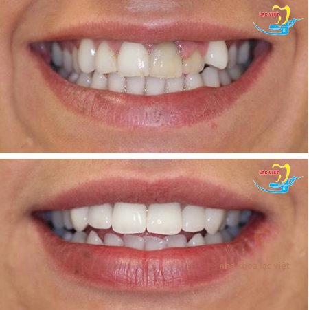 trước và sau khi bọc răng cửa tại nha khoa lạc việt