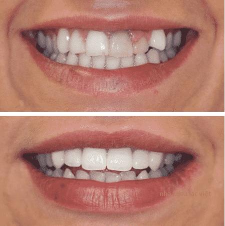 trước và sau khi bọc răng sứ thẩm mỹ như sau