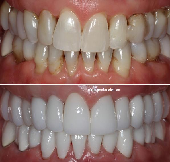trước và sau khi điều trị bọc răng sứ cercon