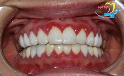 viêm lợi sau khi bọc răng sứ thẩm mỹ