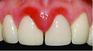 viêm lợi sau khi bọc răng sứ