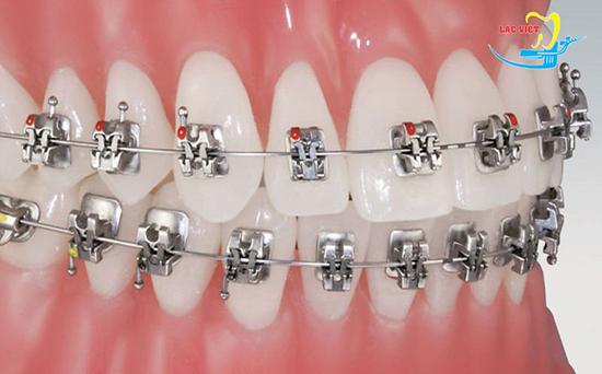 Niềng răng hô bằng công nghệ mắc cài Smart Clip