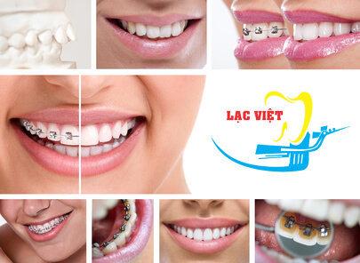 Niềng răng mắc cài thẩm mỹ tại Nha khoa Lạc Việt