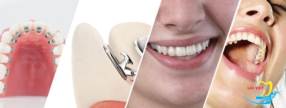 Niềng răng móm bằng phương pháp mắc cài mặt trong